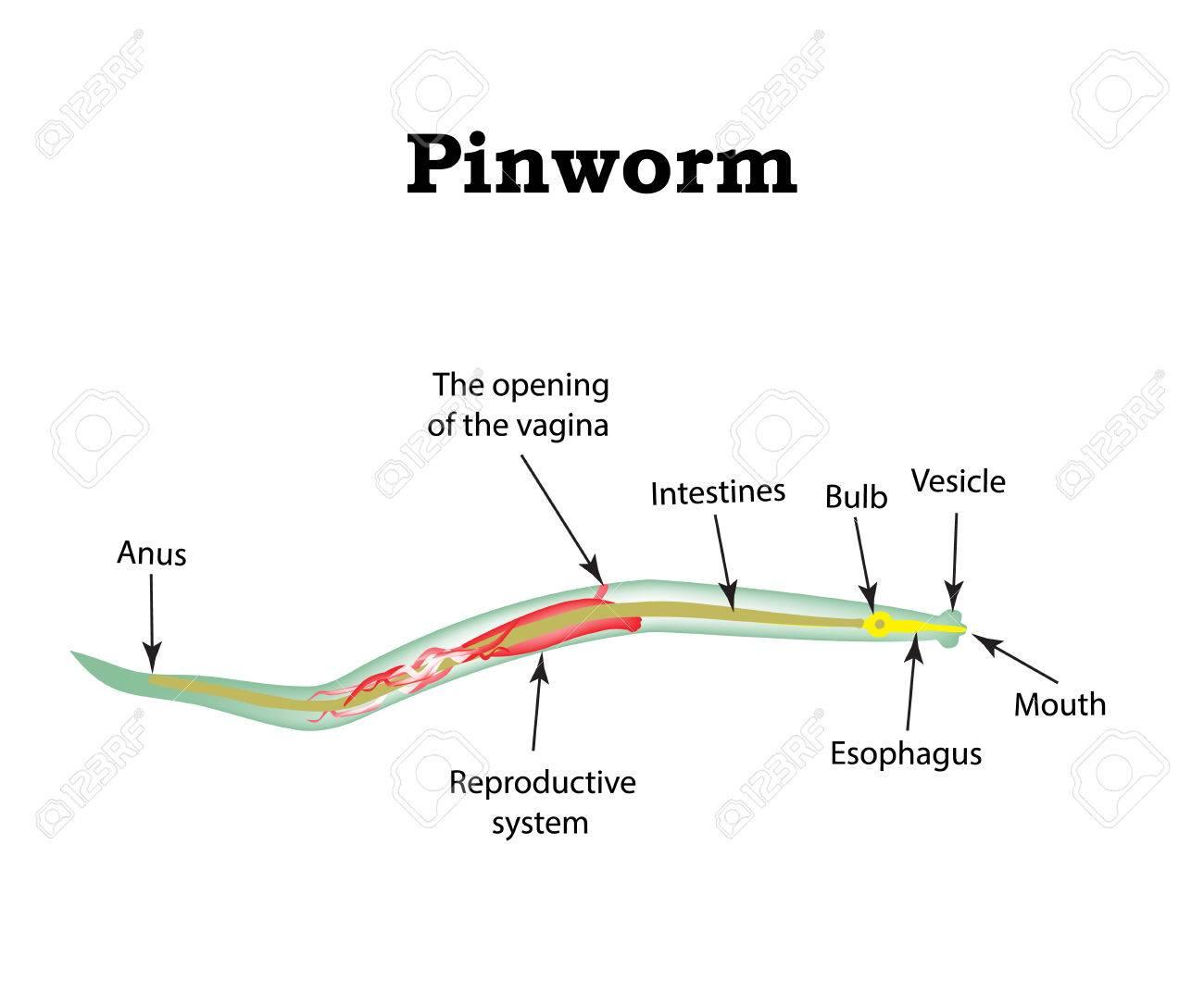 Pinworms nemzetség, Az a pinworms