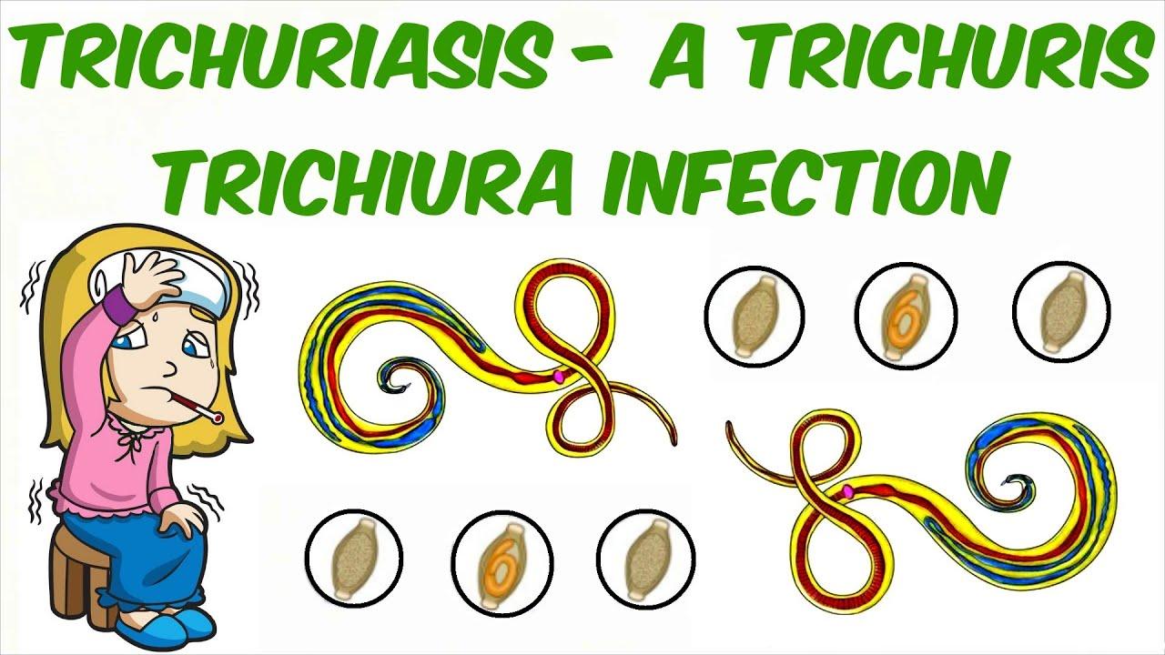 trichocephalosis fertőző betegségek