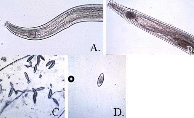 a paraziták szénanáthát okoznak a gyomor vagy a belek szaga