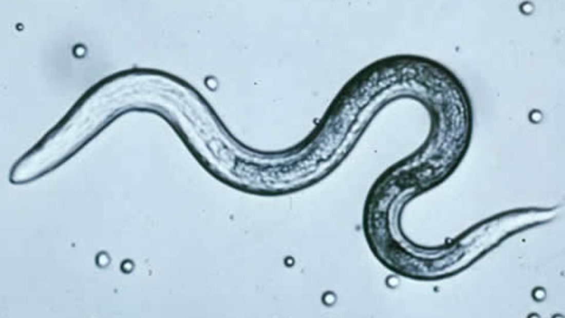 Mi a pinworms, Pinworms női méret. Pinworm: tünetek és kezelés