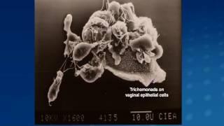 Hogyan távolítják el a parazitákat a testből