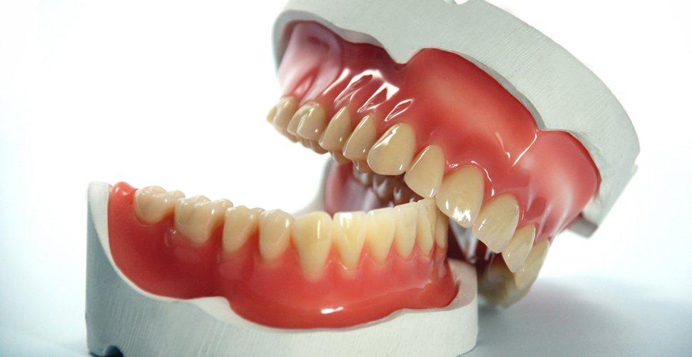 A szájgomba/szájpenész tünetei, kezelése, megelőzése - Subadental