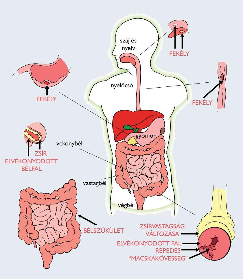 Nehézség a gyomorban. rossz lehelet - Nehézség a gyomorban és rossz lehelet