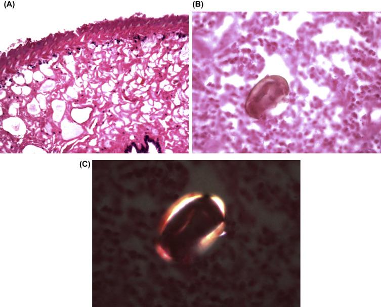 fluke pulmonalis fluke kerek féreg parazita példák