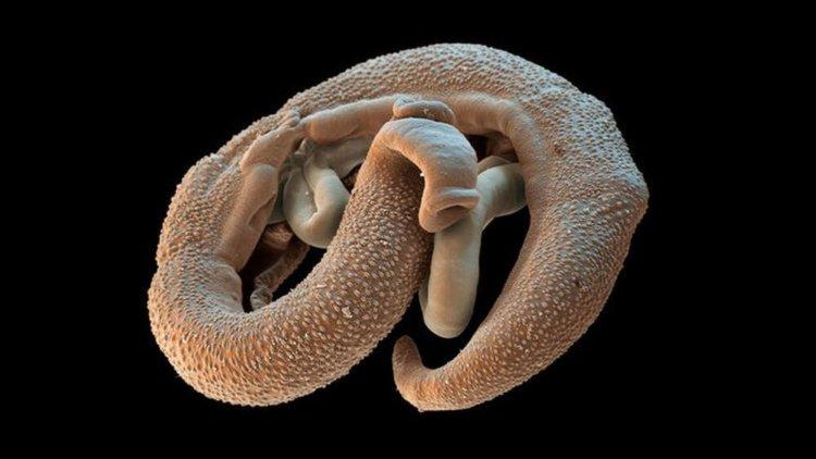 paraziták a tengerből az embereknél)