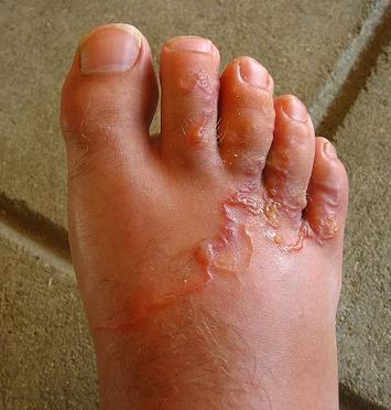 A gömbférgek jelei Hol az emberi test parazita ascaris - Élelmiszer