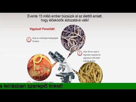 a paraziták okozhatnak- e epilepsziát