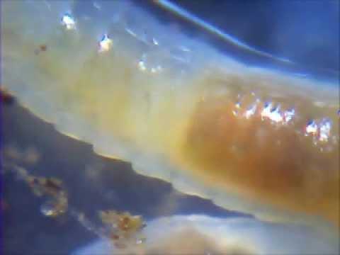 parazita gyökér nyomkövető
