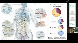 hogyan lehet eltávolítani a parazitákat az emberi test gyógyszeréből