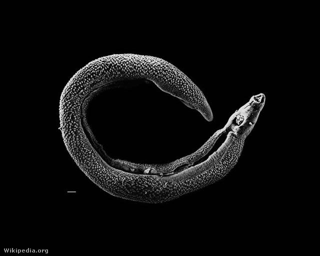 mi ölheti meg ascarist parazita az ostorféreg belében