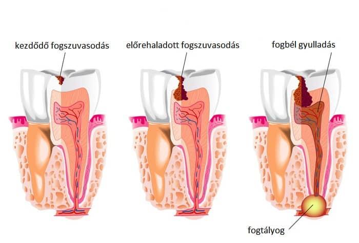 szájszag a fistula miatt