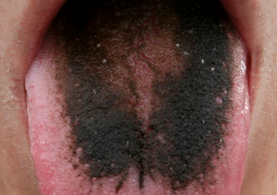 a helminták testben való jelenlétének tünetei pinworm fertőzés mik
